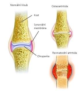 Bolest kloubů. Jak správně pečovat o klouby? | Tabata Workout